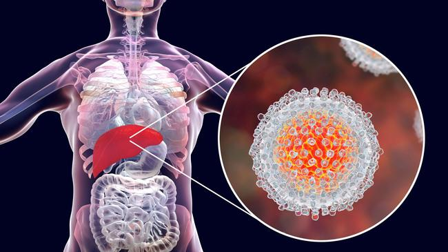 Hepatitis C Virus (Source: Kateryna Kon/Shutterstock.com) (refer to: Hepatitis-C virus Infection Affects Activity and Proliferation of Mobile Genetic Elements in Liver Cancer Cells)